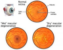 Macular Degeneration of the Eye