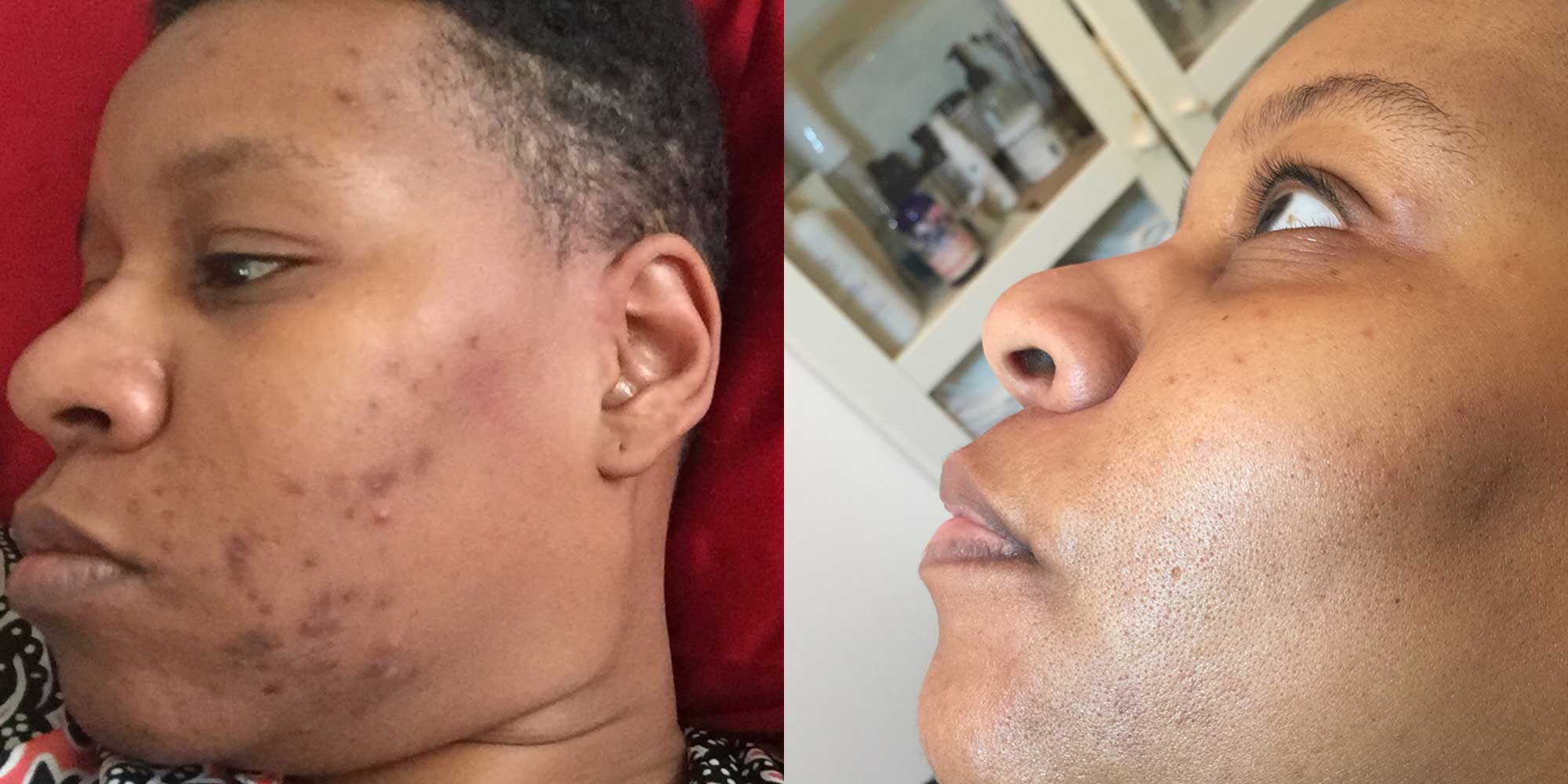 Acne before and after brown skin