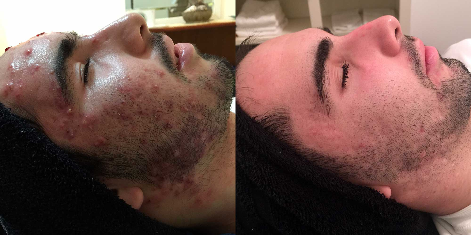 Acne befoe and after acne vulgaris