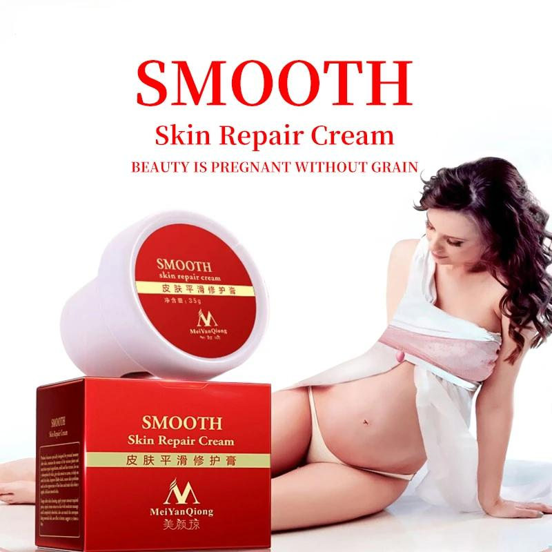 Pregnancy Stretch Marks Removal Body Cream