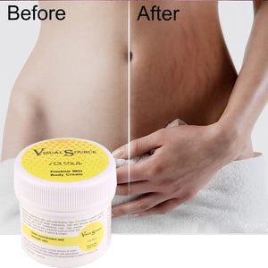 Stretch Marks Cream Scar Removal Smooth Skin Cream for Maternity Skin Repair Body Cream Recommend