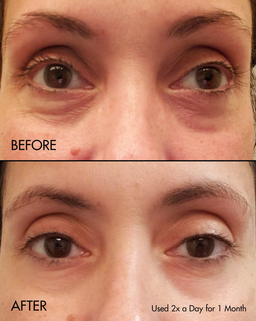 Fermentation Peptine Eye Care Cream - Before and After photo