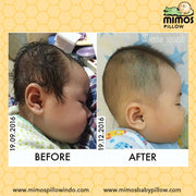 Mimos Pillow XS (Premature w/head <36cm)