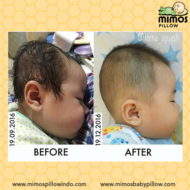 Mimos Pillow S (Newborn-6m / Head Circumference 36-46cm)