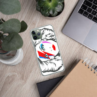 Bowie Hedwig iPhone Case