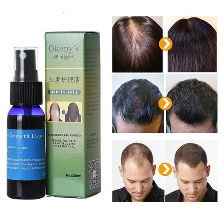 Natural Fast Hair Growth Essence Spray