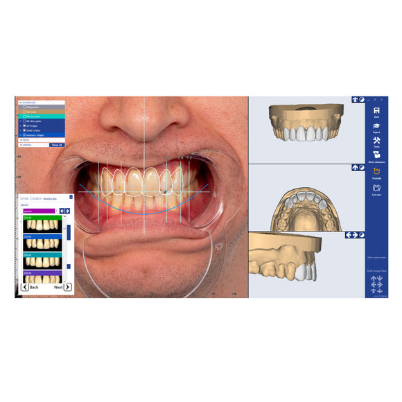 ZRS Tooth Library Software Module
