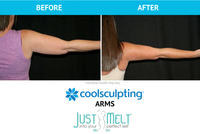 CoolSculpting for Arms in NYC