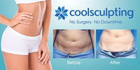 Benefits of Getting Coolsculpting for the New Year