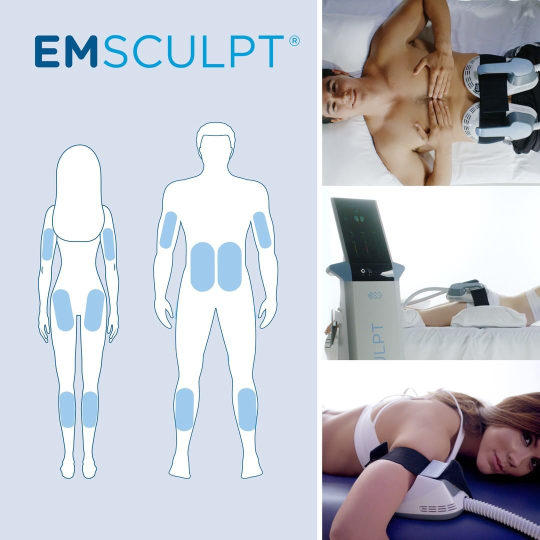 Emsculpt Treatment - Bundle of 4