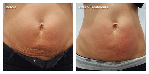 RF Skin Tightening - Body