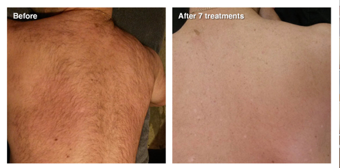 IPL, SHR & E-Light Permanent Hair Reduction