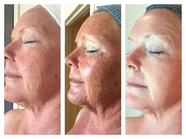 Pro Alpha Six-Layer Peel or Remodelling Procedure (RP)