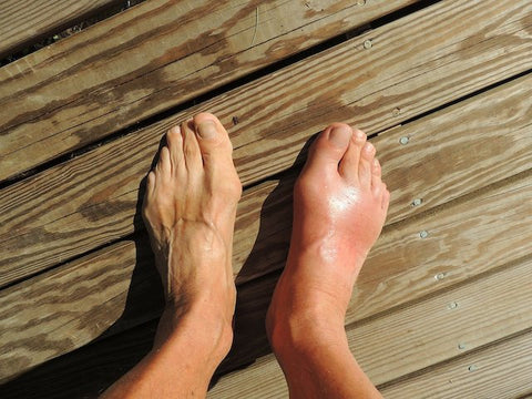 Walking difficulty due to Gout