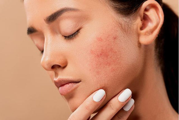 Homeopathic Treatment for Acne