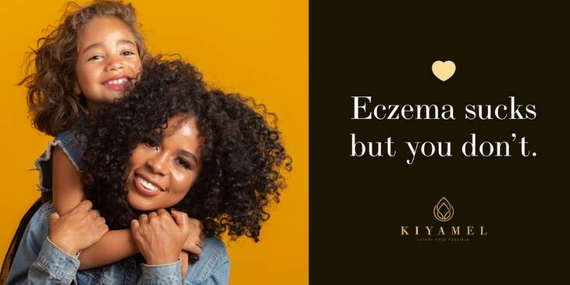 Eczema sucks but you don't, Mother with her child | Kiyamel Banner