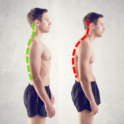 Do Posture Correctors Really Work?