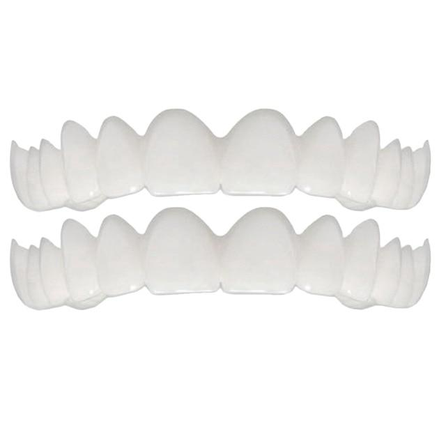 Magic Teeth Brace Veneers Veneer