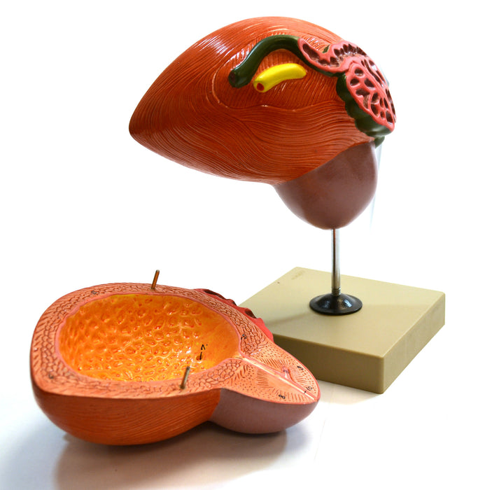 "Eisco Labs Human Urinary Bladder with Prostate Anatomical Model, 2 Parts, 3 Times Life Size, Approx. 8""x8""x6"""