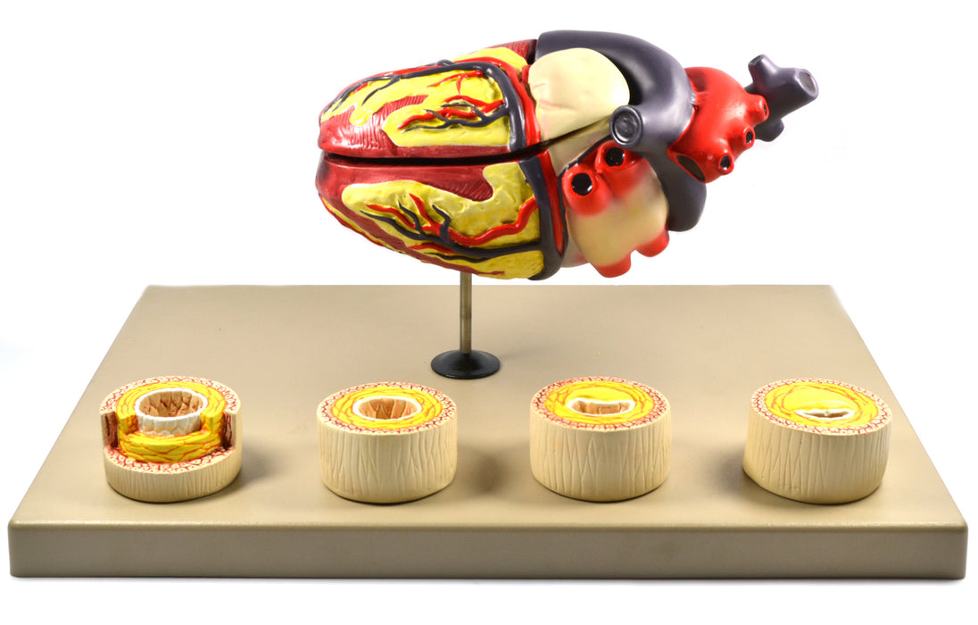 "Eisco Labs Model of Human Heart Conditions Pathology; Larger than life size (10""); Artery Cross sections 2.5"" in diameter"