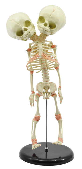 Infant Fetus Skeleton Model, Mini Size - Twin, Conjoined Skull - Rod Mounted