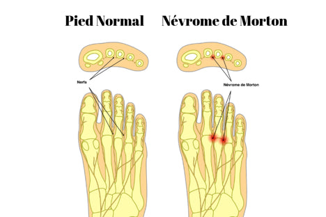 nevrom-de-morton-diagnostic