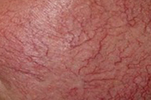 Capillaries caused by liver damage.