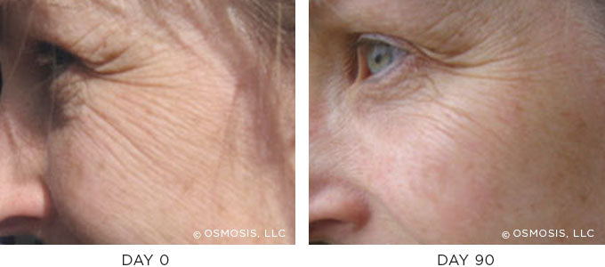 Fine Lines and Wrinkles before and after results image