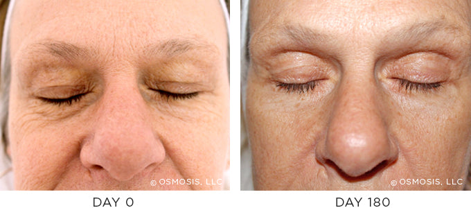Fine Lines and Wrinkles Before and After Results
