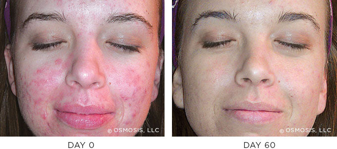 Blemish-prone before and after results image