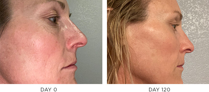 Osmosis recovery before and after
