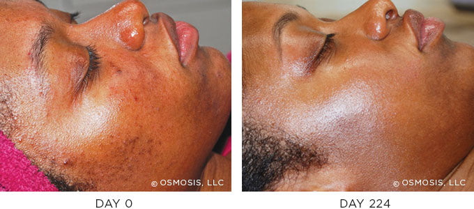 Pigmentation before and after results image