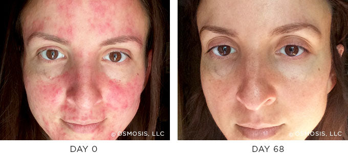 Redness before and after image result