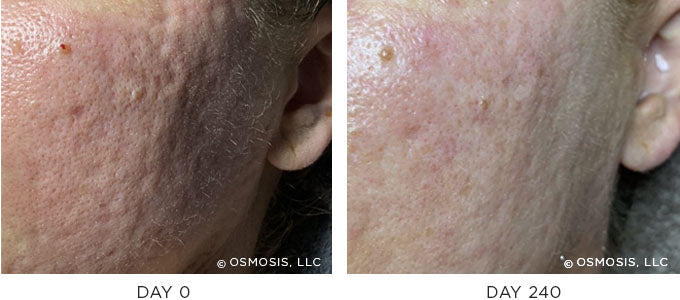 Redness and Rosacea Before and After