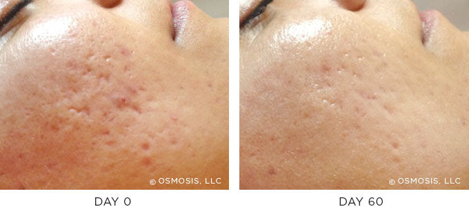 Scarring before and after results image