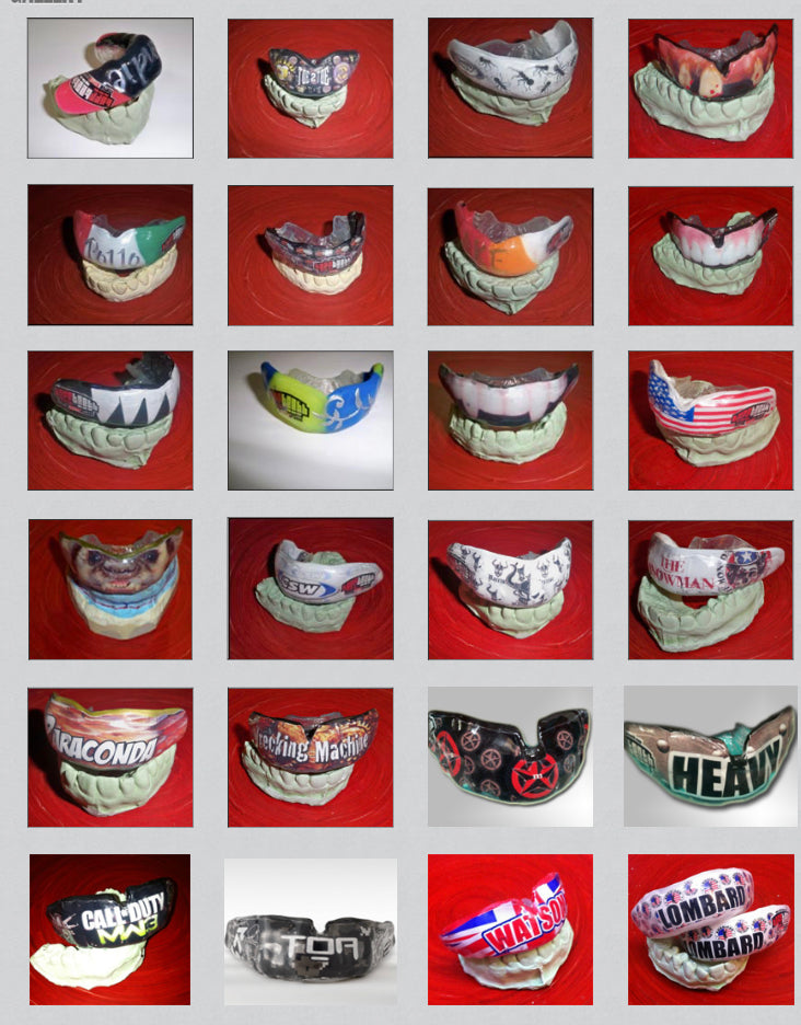 Custom Mouth Guards - Graphic, Name or Logo