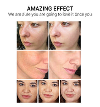 Load image into Gallery viewer, VC Whitening Facial Cream  - Remove Dark Spots