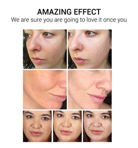 VC Whitening Facial Cream  - Remove Dark Spots