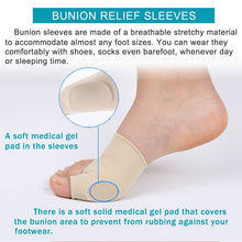 Load image into Gallery viewer, Bunion Corrector Set