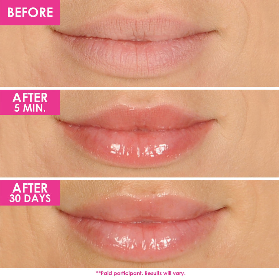 GrandeLIPS Hydrating Lip Plumping Gloss