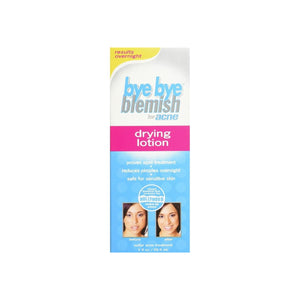 Bye Bye Blemish For Acne Drying Lotion 1 oz