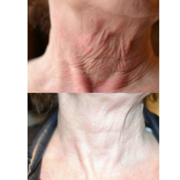 THE MAX STEM CELL NECK LIFT
