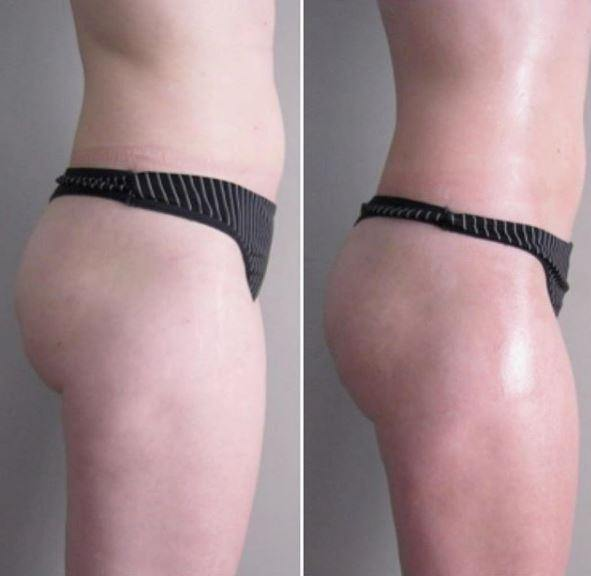 BIOSLIMMING CONTROL SHAPE
