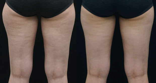 Clatuu Alpha before & after photo thighs
