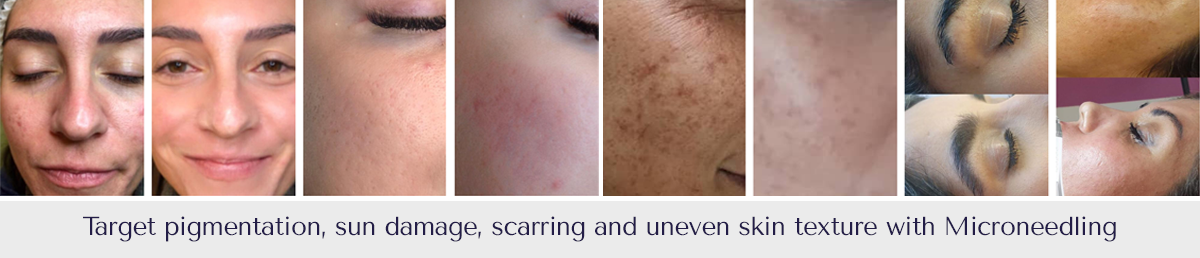 Skin needling before and after photos Gold Coast