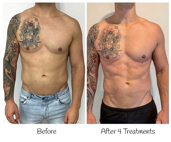 TeslaFormer before and after photo of male patients chest and stomach