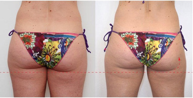 TeslaFormer before and after photo of female patients buttocks