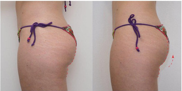 TeslaFormer before and after photo of female patients buttocks side view
