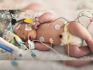 Baby Dead for 20 mins Revived - Glory to God!