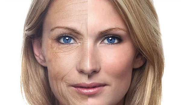 The Signs of Aging Skin